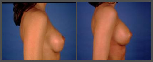 Breast Augmentation – Revisional Surgery