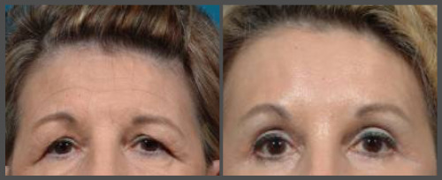 Browlift And Eyelid Surgery (Blepharoplasty)