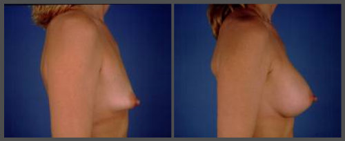 Tubular Breast Deformity Corrected with Saline Augmentation