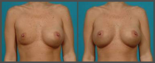 Breast Implant Deflation