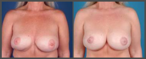 Redo Lift and Reposition Implants