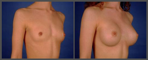 Breast Augmentation - Dr. Hobar