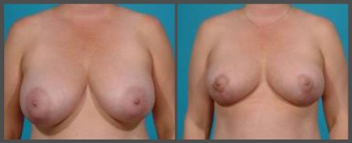 Breast Reduction Surgery