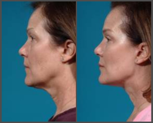 Face-lift - Dr. Hobar