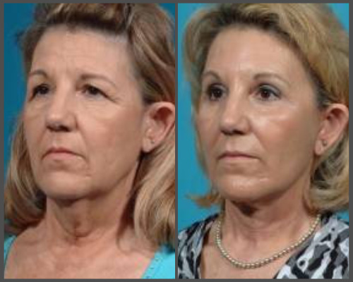 Facelift, Browlift, Eyelid Surgery