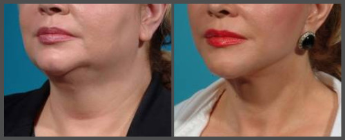 Lower Neck and Face Lift - Dr. Hobar
