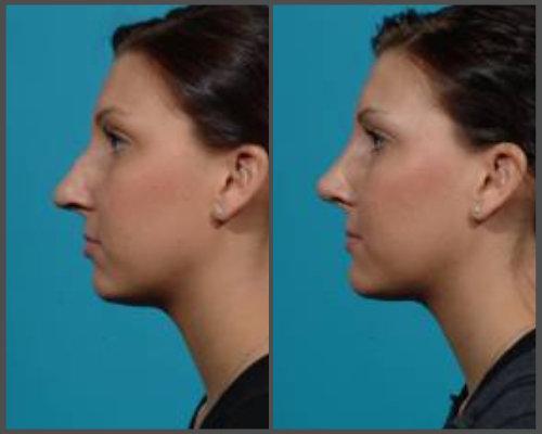 Dr. Hobar - Rhinoplasty