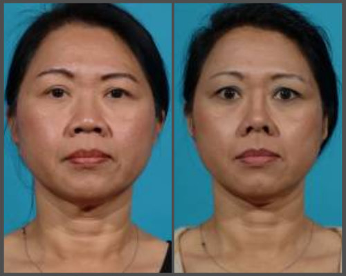 Dr. Hobar - Rib Graft Rhinoplasty