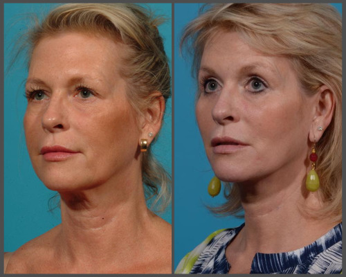Natural Facelift - Dr. Hobar