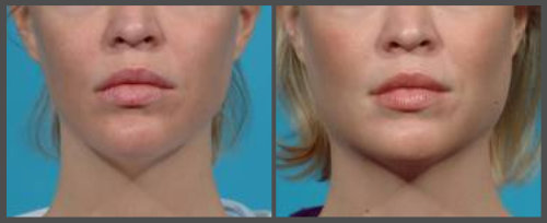 Dr. Hobar - Jaw Implant
