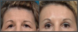 Browlift and Eyelid Surgery