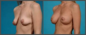 Breast Augmentation and Lift - Dr. Hobar