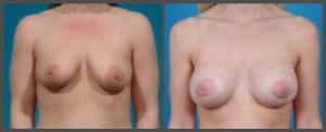 Breast Enhancement Dallas TX
