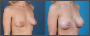 Breast Augmentation Dallas TX