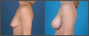 Breast Augmentation and Lift - Dr. Hobar