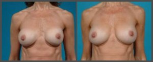 Breast Lift With Small Implant Dallas TX