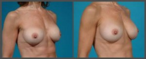 Breast Implant Exchange Dallas TX