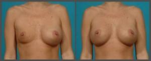 Breast Implant Deflation Dallas TX