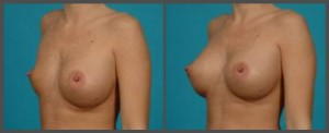 Breast Implant Deflation Dallas TX