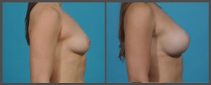 Breast Enhancement Dallas TX