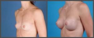 Breast Augmentation With Pectus Excavatum