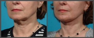 Lower Face and Neck Lift with Fraxel Re:Pair