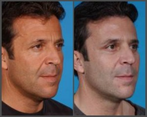 Midface Lift with Blepharoplasty