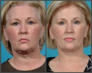 Secondary Facial Rejuvenation