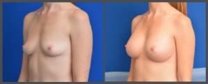Breast Gallery - Dr. Hobar