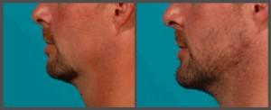 Dr. Hobar - Genioplasty